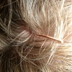 scalp iritat